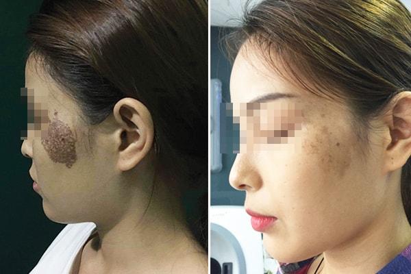 Liệu trình trị bớt miễn phí tại Medcare Skin Centre
