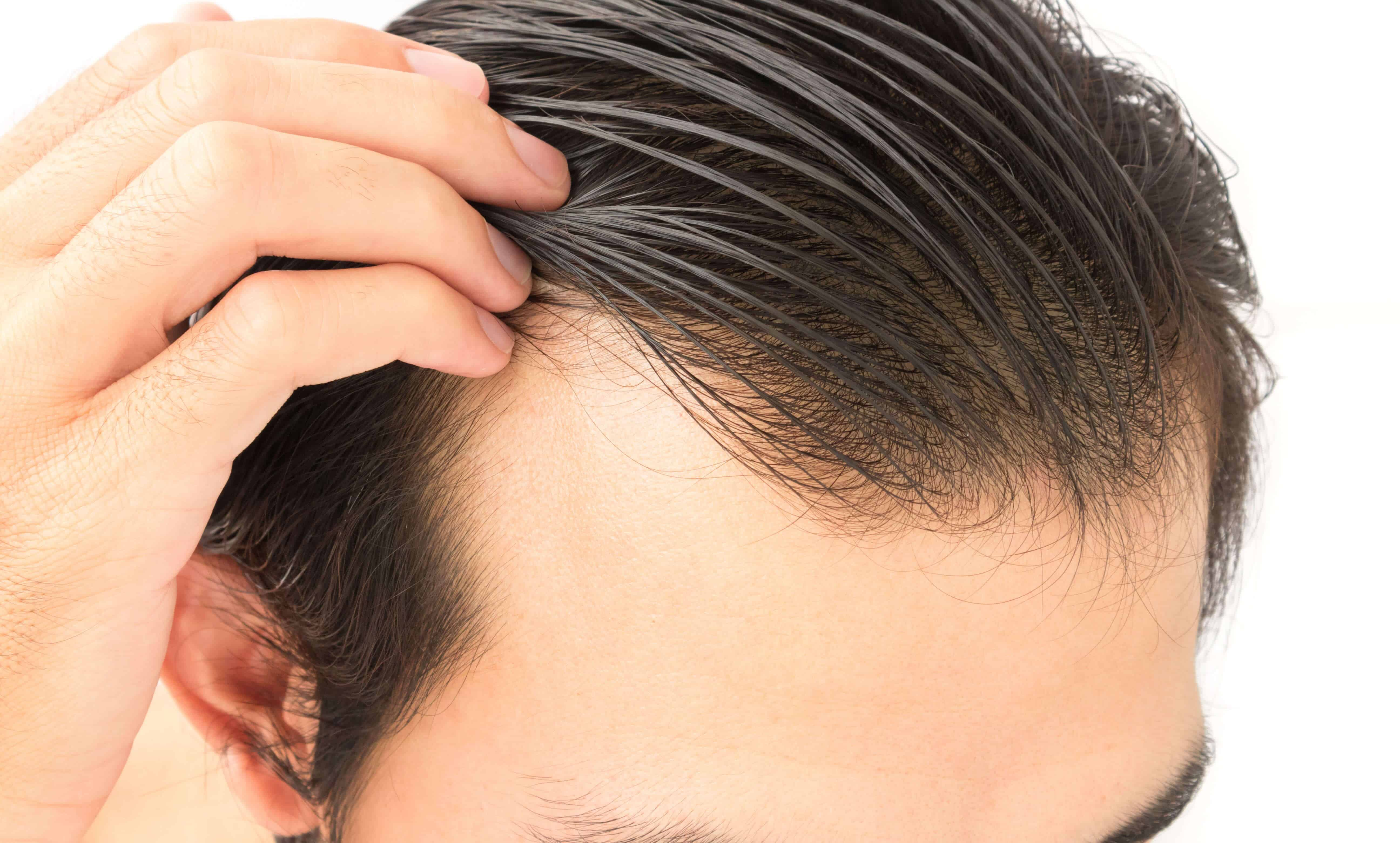 PRP – Hair Loss Treatment – Điều trị rụng tóc bằng tế bào gốc kết hợp PRP