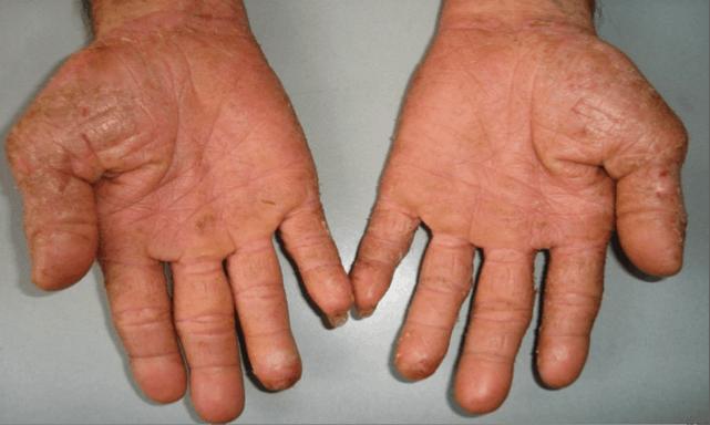 Bệnh á sừng bàn tay, bàn chân và cách chăm sóc