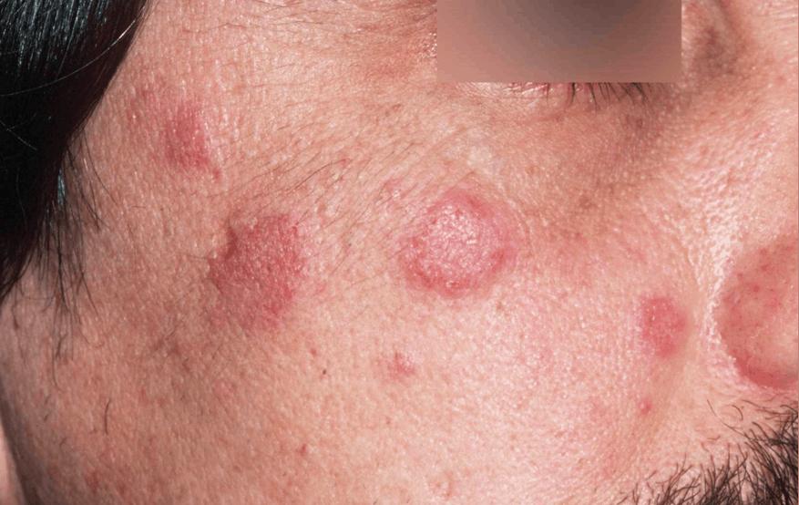 Bệnh Luput Đỏ