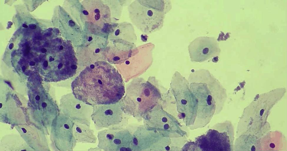 Viêm âm đạo do vi khuẩn (BACTERIAL VAGINOSIS)