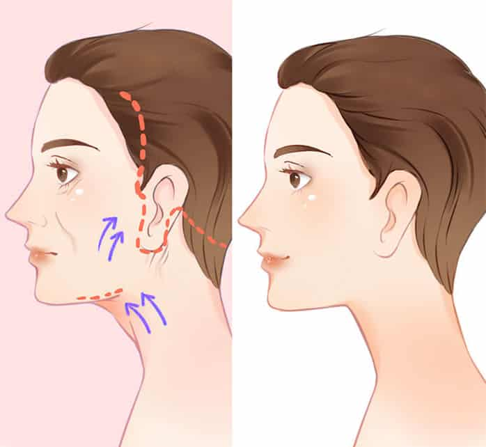 Ứng dụng Mesotherapy trong Điều trị Bệnh lý da và thẩm mỹ da